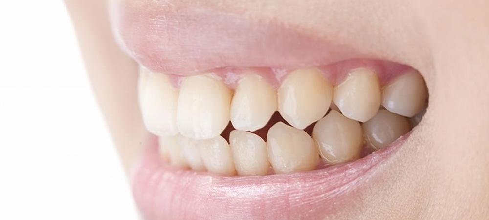 つめ物や入れ歯の不具合