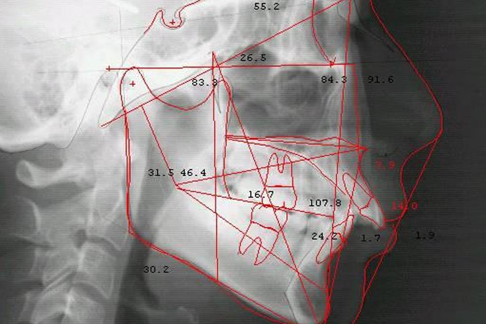 セファロレントゲン