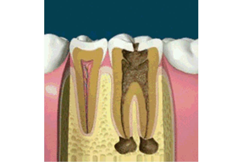 再植術と歯根端切除術