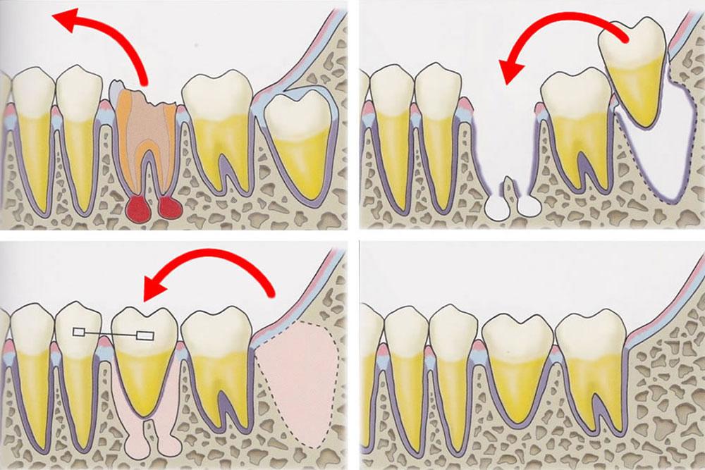 親知らずの移植(自牙歯牙移植)