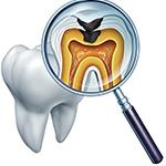 虫歯治療・精密根管治療