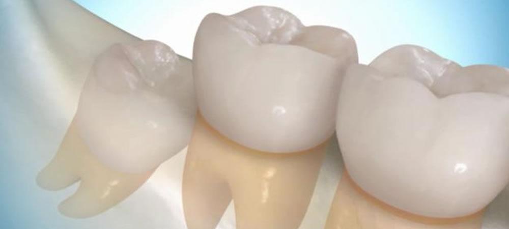 親知らずの抜歯や親知らずの移植
